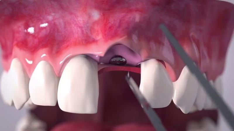 Geistlich Fibro Gide Аугментация мягких тканей вокруг дентальных имплантатов