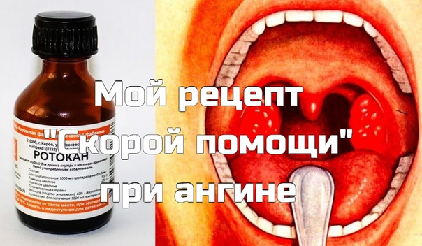 """Мой рецепт """"Скорой помощи"""" при aнгине - горло лечу только так!"""