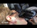 Удаление татуировок на лице