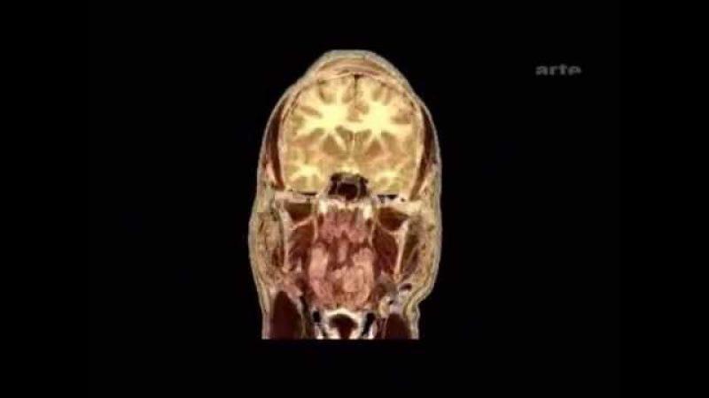 Drogues Cerveau - Alcool Tabac - Arte TV (2005)