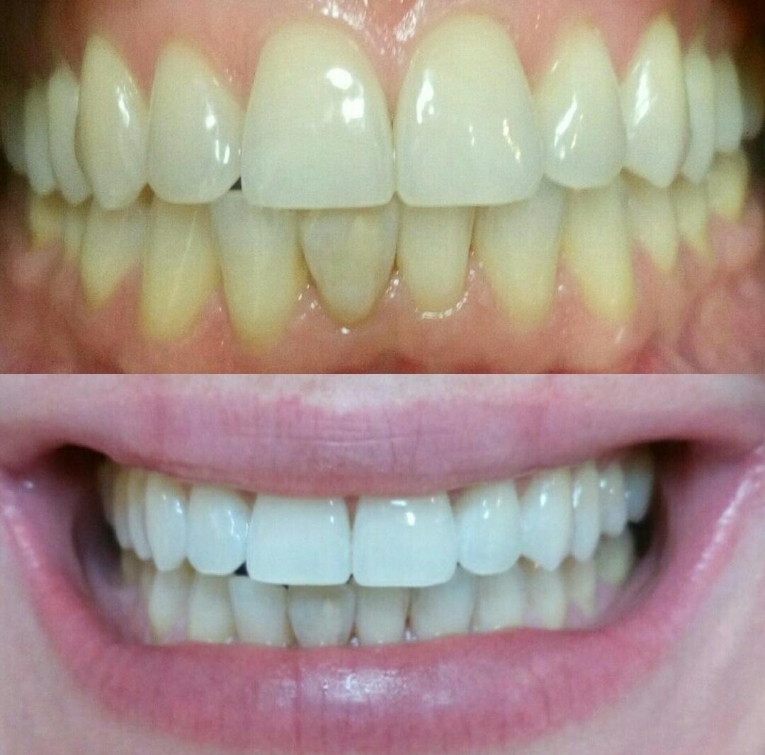 Студия Style&Smile, набирает моделей на отбеливание зубов!