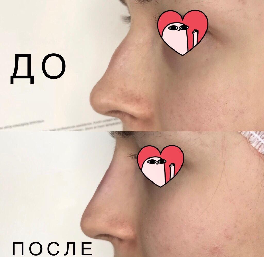 Дорогие девушки, врач косметолог с высшим медицинским образованием ищет моделей на 27,31 мая, 2 июня для пополнения портфолио на следующие услуги: