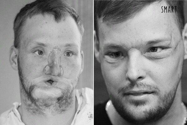 Пересадка кожи лица.