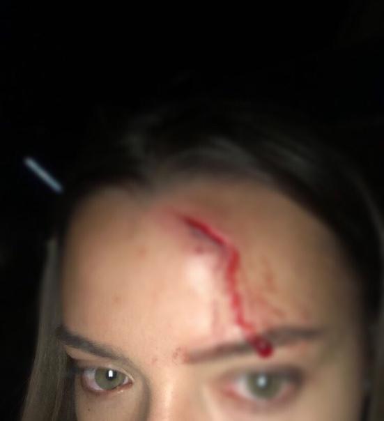 Кавказец в кровь разбил лицо работнице тира. Далее вся история от лица самой пострадавшей:Здравствуйте, я работаю в тире на Большом Утрише. 11.08.19 примерно в 20:50 я готовилась к закрытию. Ко